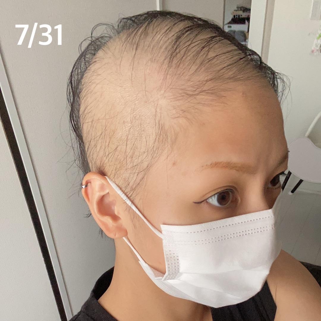 【悲報】28歳女性、モデルナワクチン1回目を職域接種後尋常じゃないスピードでハゲる(画像あり)  ★6  [potato★]